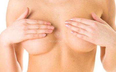 Dual Plane, la innovadora técnica de aumento de mamas