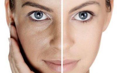 Mesoterapia Facial: revitaliza tu cutis
